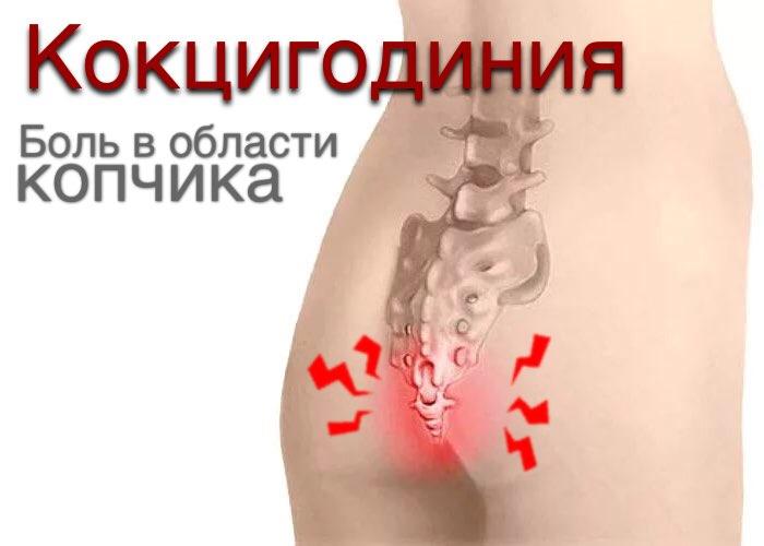 Остеохондроз копчика причины и лечение. Чем хорошо лечить?