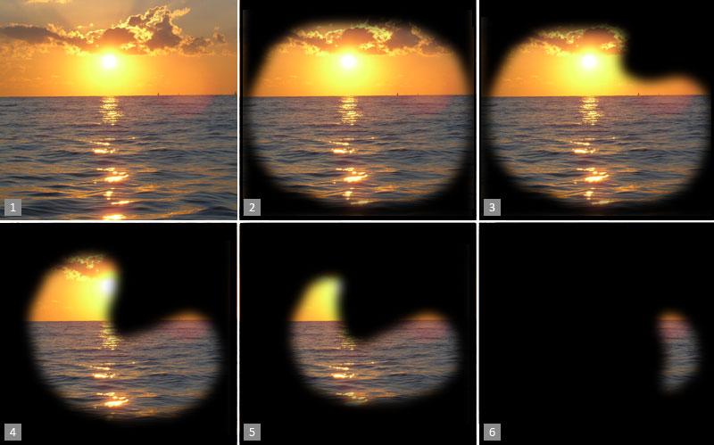 Изменение поля зрения при глаукоме