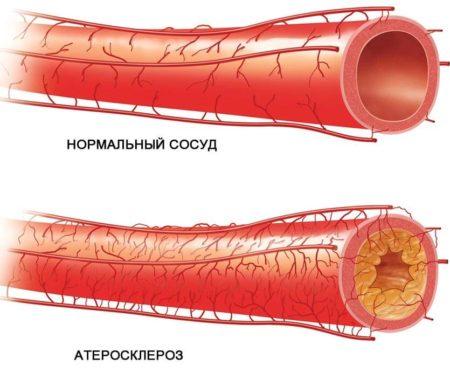 Отличия кальяна от сигарет, повышается или понижается давление от его курения, противопоказания