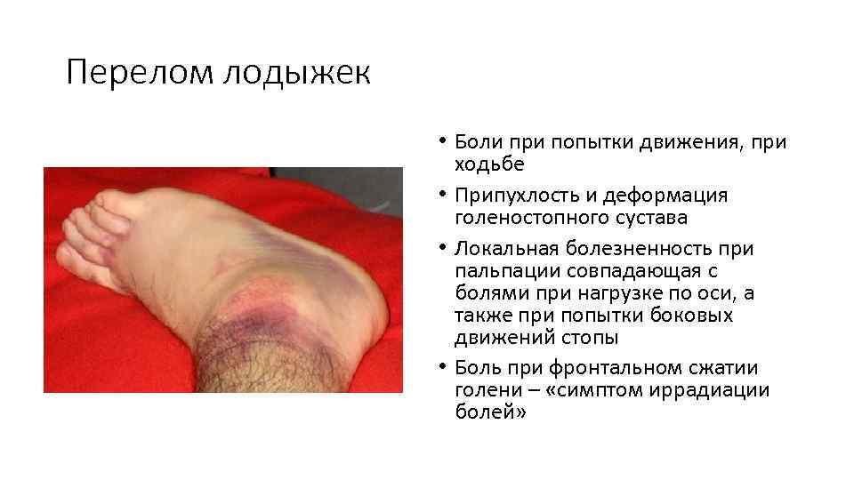 Гимнастика для восстановления голеностопа после перелома. 8 упражнений