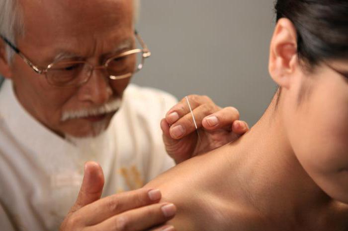 6 полезных свойств иглотерапии при остеохондрозе шеи. Какой может быть вред?