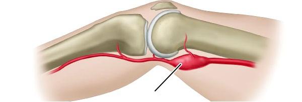 13 болезней при которых болит колено сбоку с внутренней стороны.