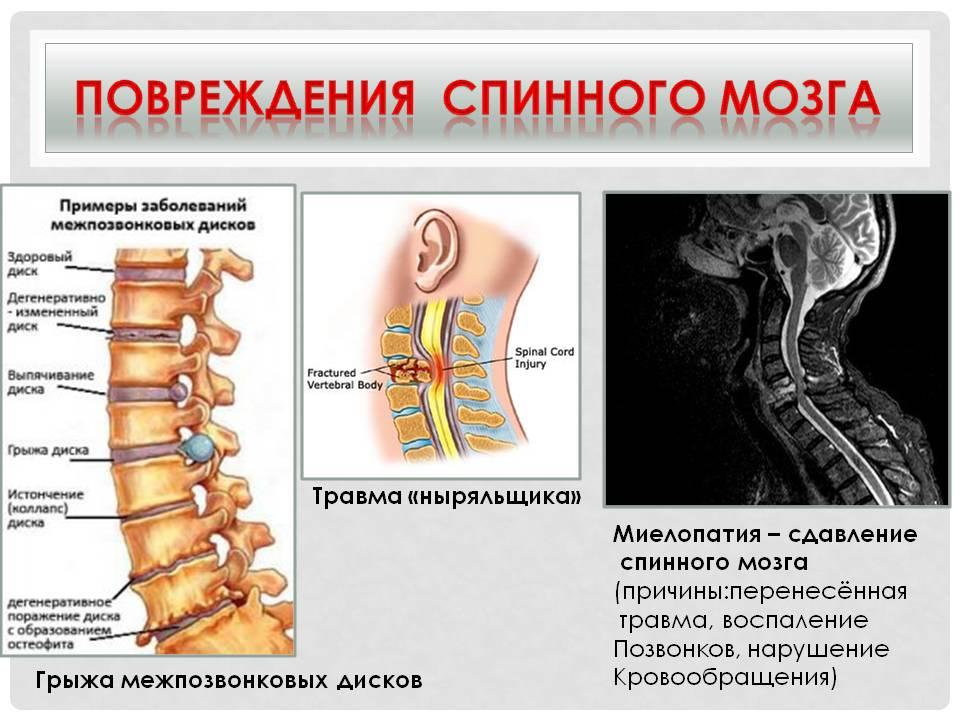 Травма и повреждение позвоночника симптомы, лечение и пмп.