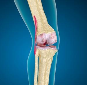 Заболевание коленного сустава на снимке