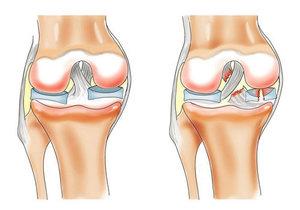 Ка лечить разрыв связок в колене
