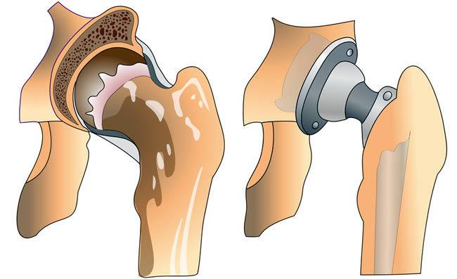 3 основных варианта протезов на замену тазобедренного сустава по квоте