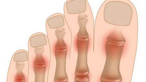 10 причин воспаления сустава большого пальца. Связь с болезнями