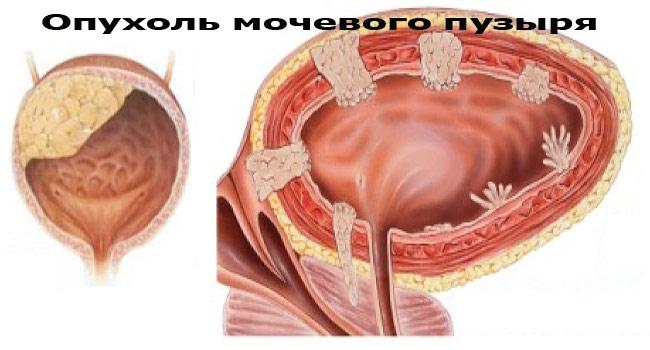 Рак в мочевом пузыре в картинках