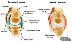 Артроз суставов: причины и лечение