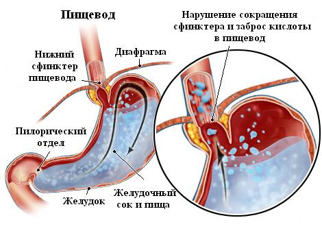 Сфинктер желудка