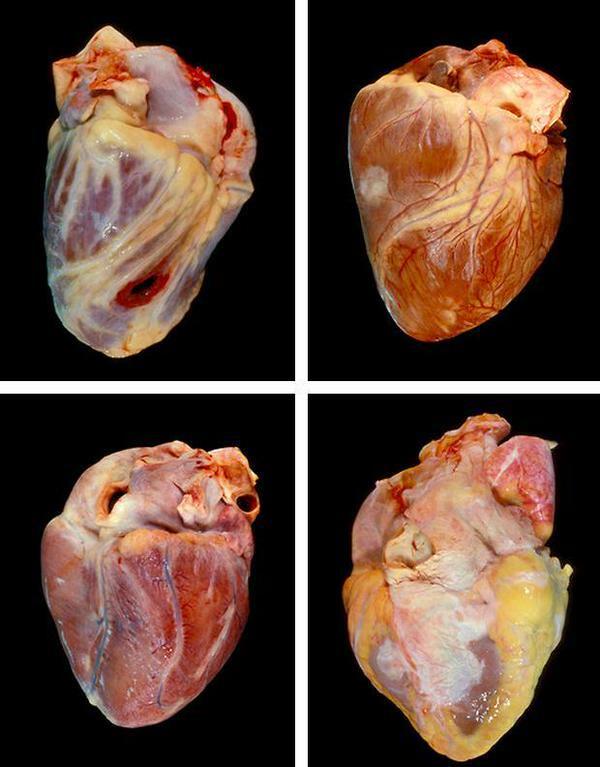 сердце при ожирении