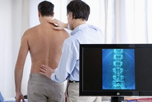 Эпидурит позвоночника 5 разновидностей и симптомы
