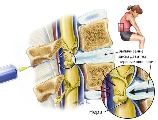 9 осложнений блокады при грыже позвоночника, в т.ч. из-за ошибок враче