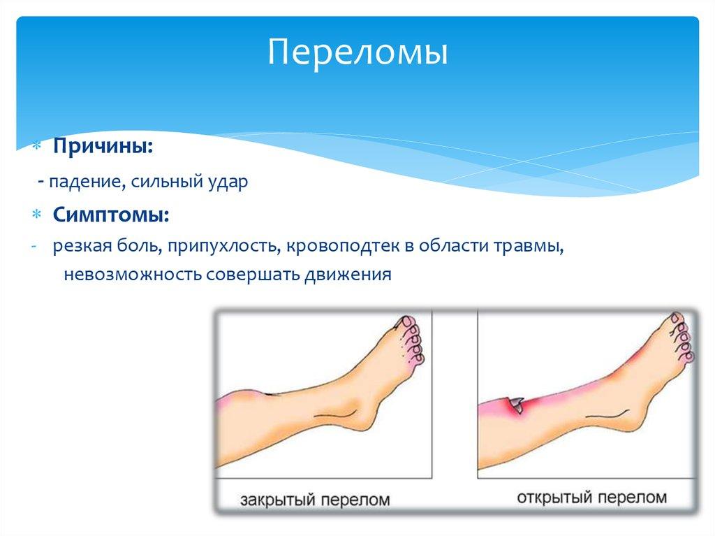 Перелом разных костей стопы 4 признака и лечение