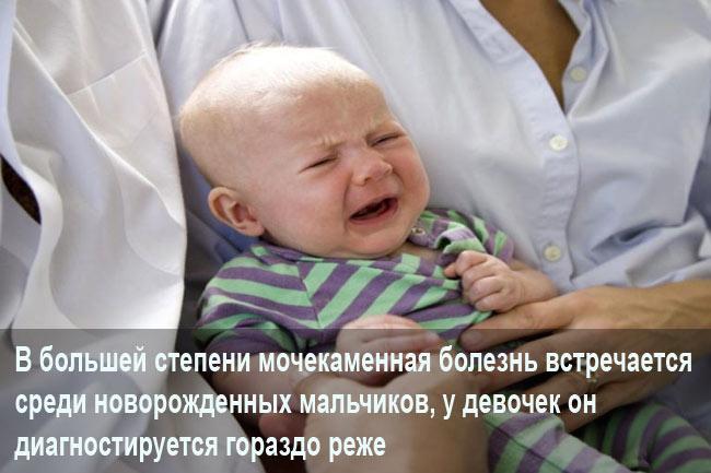Мочекаменный недуг у маленького ребенка