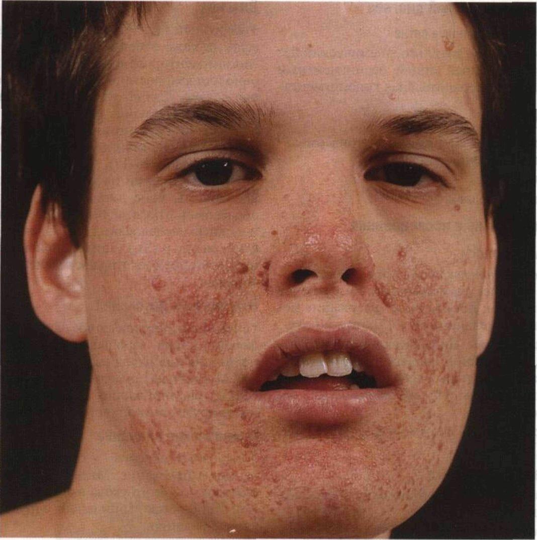туберозный склероз у детей симптомы
