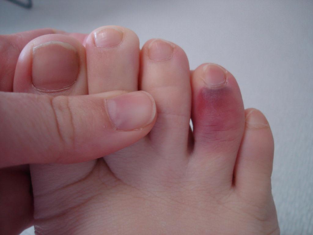 4 отличия чтобы определить перелом у Вас или ушиб пальца ноги