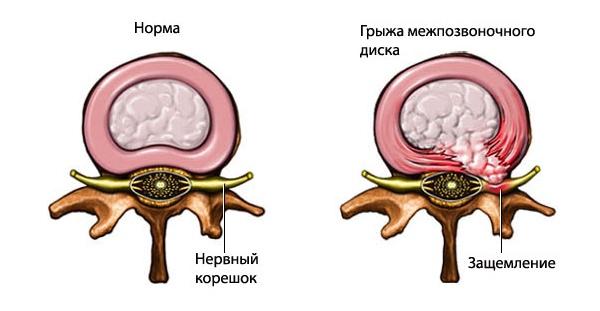 У вас может перекосить скелет от этой болезни люмбоишиалгия и её лечение