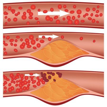 Основы гипохолестериновой диеты для больных гипертонией, лечение без медикаментозных средств