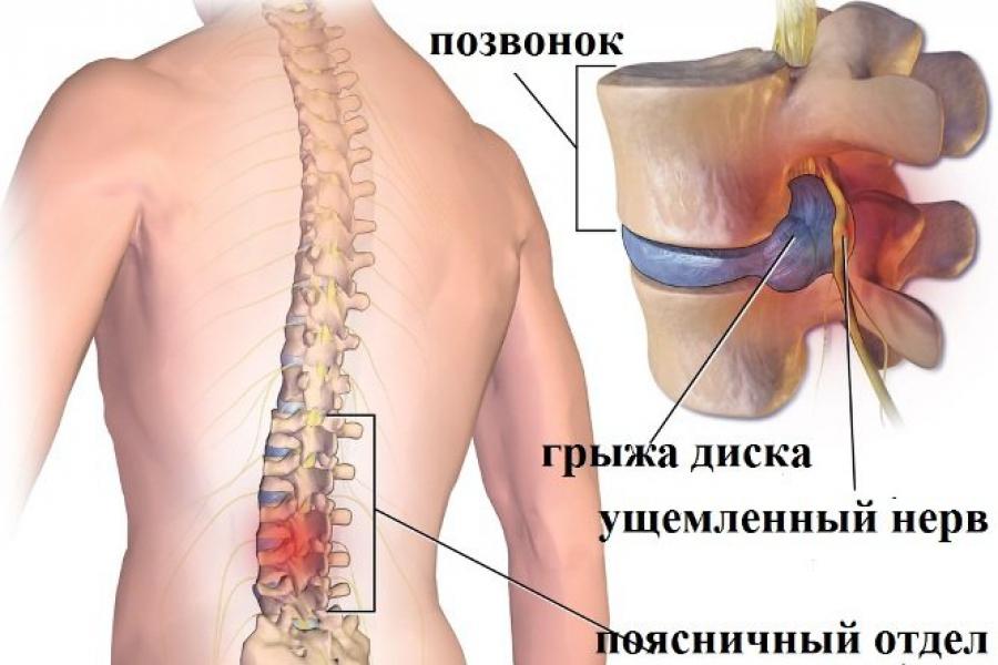 Пояс для спины при грыже поясницы 6 видов