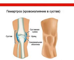Как вылечить коленный сустав