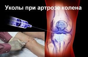 Как лечить артроз колена