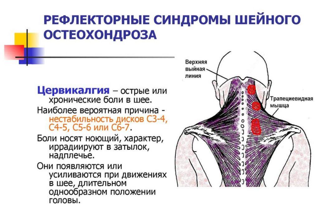 Как лечить шейный остеохондроз у женщин 13 признаков болезни.