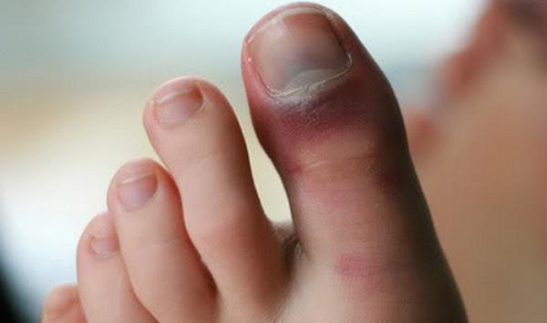 3 опасности ушиба пальца на ноге признаки и лечение